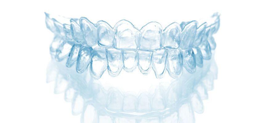 для чего нужны капы для зубов в стоматологии