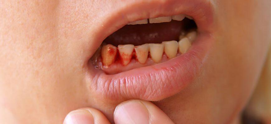 идет кровь из десны между зубами как остановить