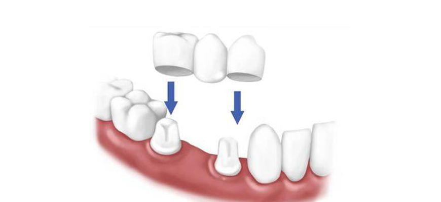 Из какого материала могут быть мосты на зубы