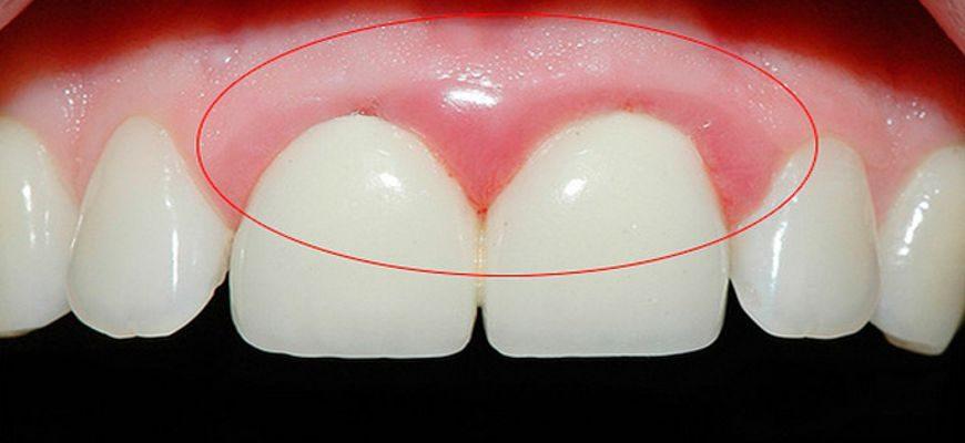 Из за чего может болеть коренной зуб передний