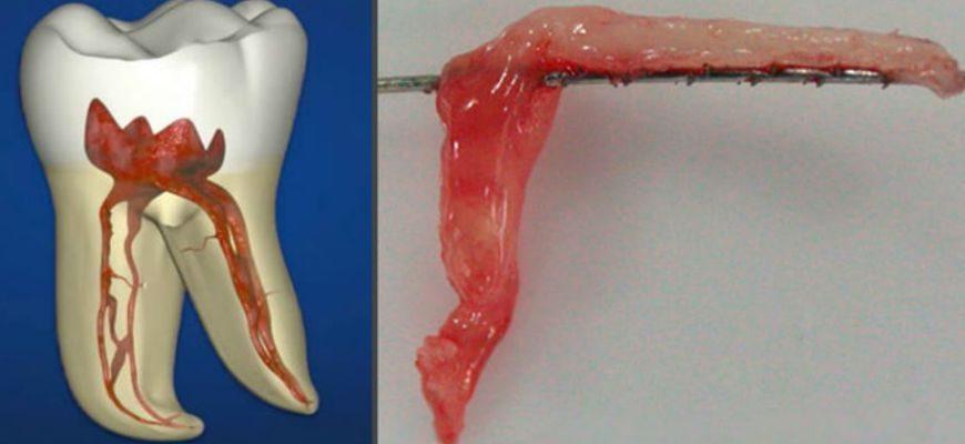 как болит нерв в зубе симптомы и лечение