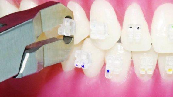 Как убрать белые пятна на зубах после брекетов