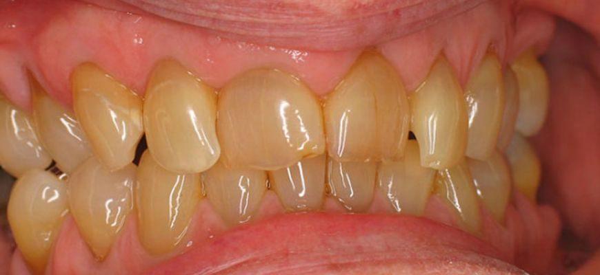 как убрать желтый налет от сигарет на зубах