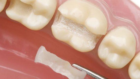 какую пломбу лучше ставить на жевательные зубы взрослым