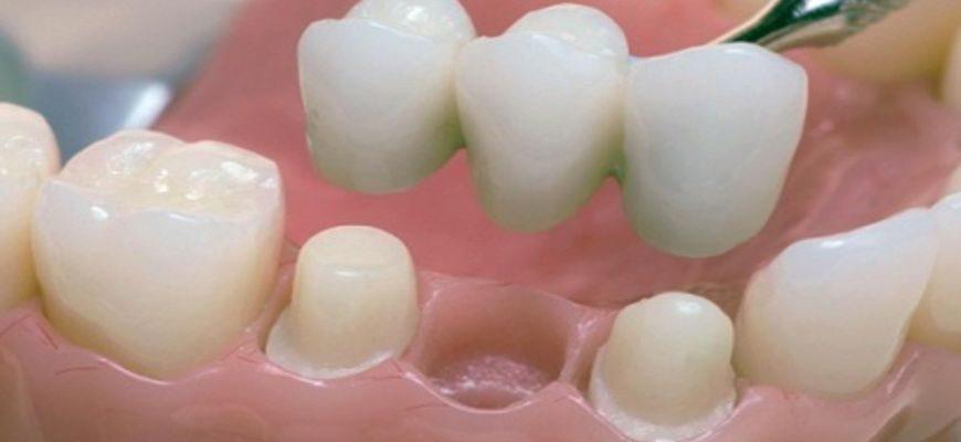 Коронка на один зуб без удаления