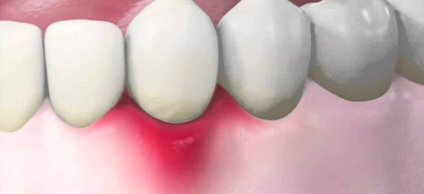 лечение свища десны без удаления зуба