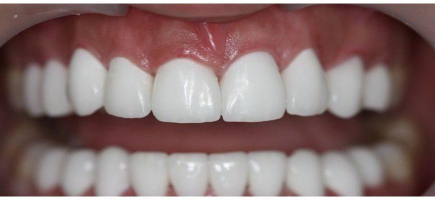 люминиры или виниры что лучше ставить на зубы