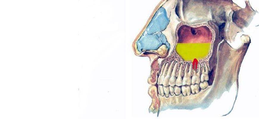 может ли от зуба быть воспаление гайморовой пазухи