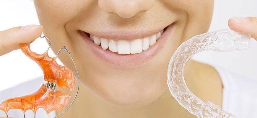 можно ли исправить кривые зубы в 15 лет