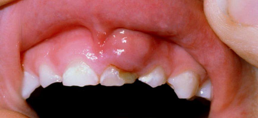 На десне гнойник над молочным зубом что делать