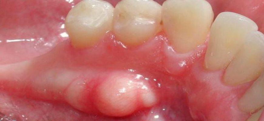 Нарост на десне после удаления зуба