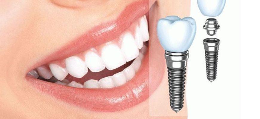 Одноэтапная и двухэтапная имплантация зубов что это такое