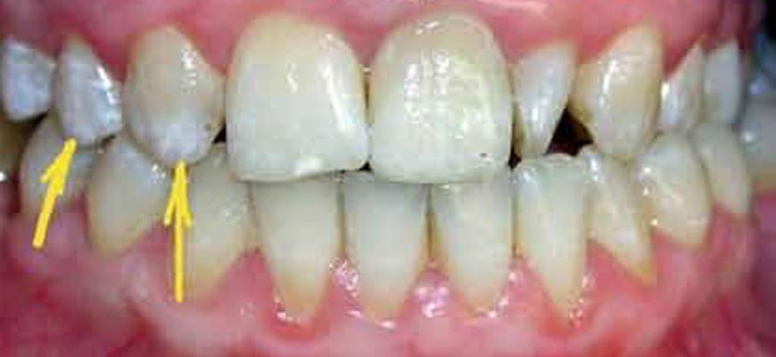 переизбыток фтора на зубах лечение в домашних условиях