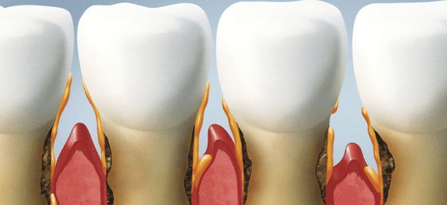 периодонтит зуба что это такое как лечить в домашних