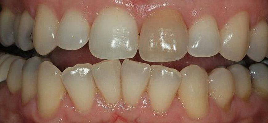 пигментация зубов и налеты причины принципы лечения профилактика