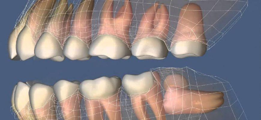 ретинированный моляр