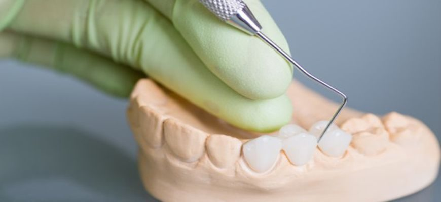 щель между десной и коронкой при удаленном зубе
