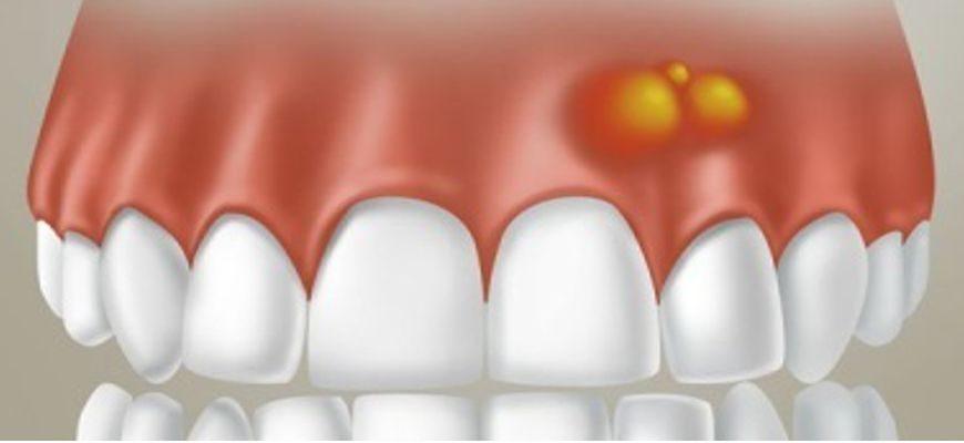 Шишка после удаления зуба на десне