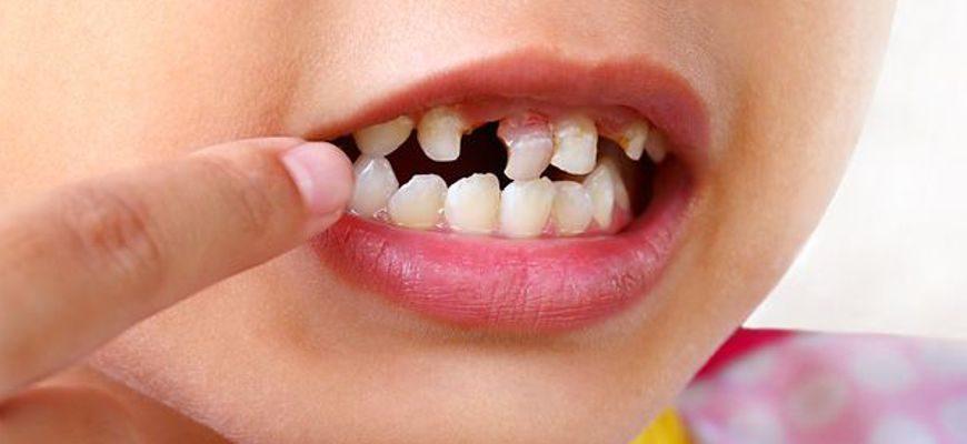 Удаление налета на зубах у детей