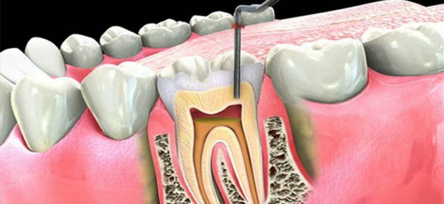 болит зуб под пломбой удаление нерва