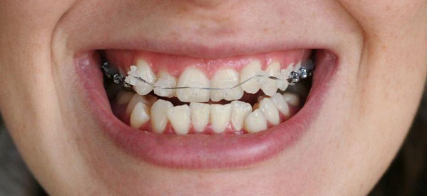 В каких случаях удаляют зубы при установке брекетов