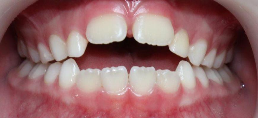 в каком возрасте можно выравнивать зубы у ребенка