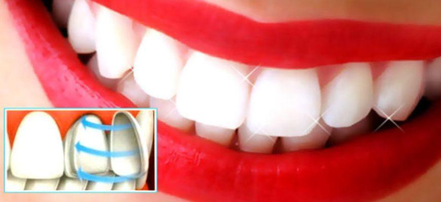все плюсы и минусы о винирах на зубы
