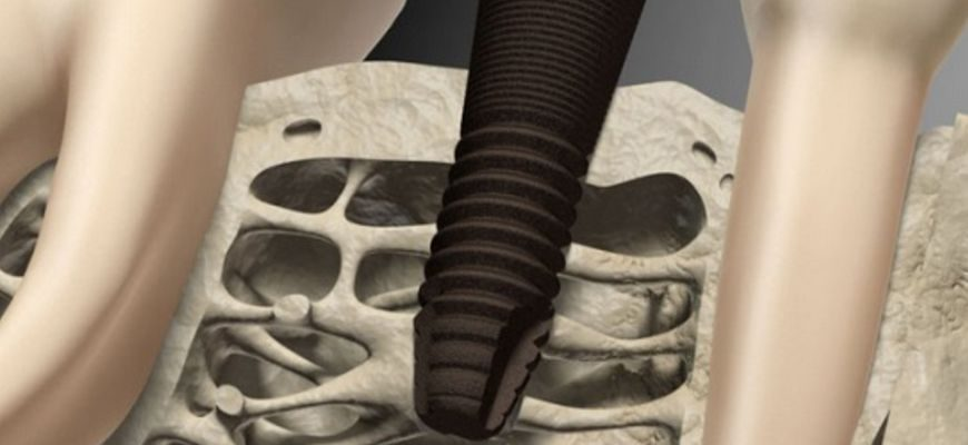 является ли гепатит с противопоказанием к имплантации зубов